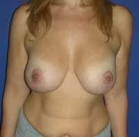 Asymmetric breast ptosis after weight loss.