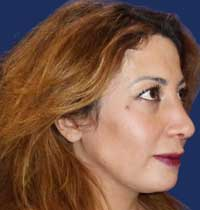 nose plastic surgery in Greece  Rhinoplasty abroad
